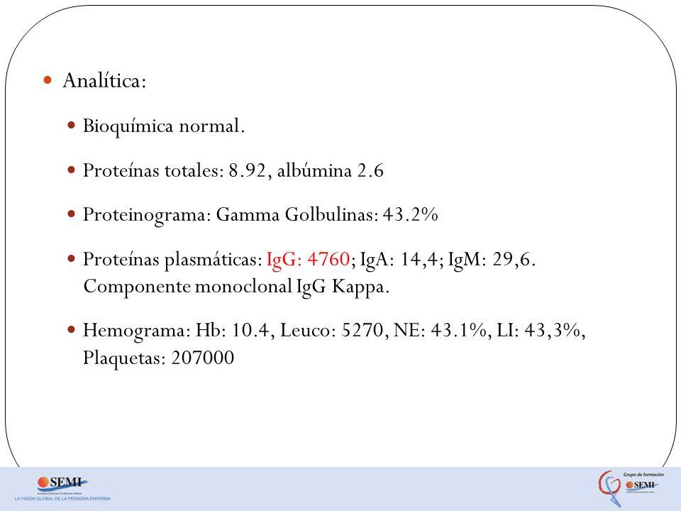 Analítica: Bioquímica normal. Proteínas totales: 8.92, albúmina 2.6 Proteinograma: Gamma Golbulinas: 43.2% Proteínas plasmáticas: IgG: 4760; IgA: 14,4
