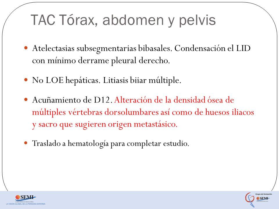 TAC Tórax, abdomen y pelvis Atelectasias subsegmentarias bibasales. Condensación el LID con mínimo derrame pleural derecho. No LOE hepáticas. Litiasis