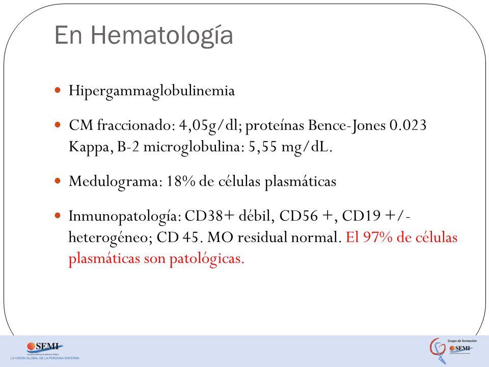En Hematología Hipergammaglobulinemia CM fraccionado: 4,05g/dl; proteínas Bence-Jones 0.023 Kappa, B-2 microglobulina: 5,55 mg/dL. Medulograma: 18% de