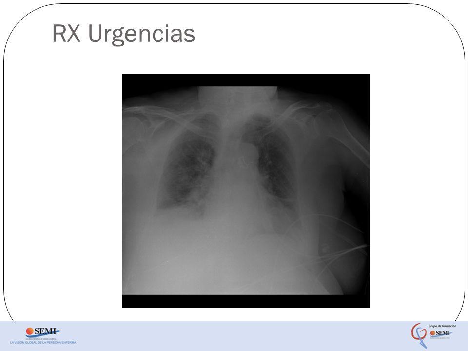 Tratamiento Diurético VMNI con CPAP.Amoxicilina/Ac.
