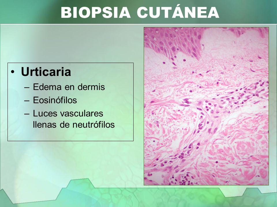 BIOPSIA CUTÁNEA Urticaria –Edema en dermis –Eosinófilos –Luces vasculares llenas de neutrófilos