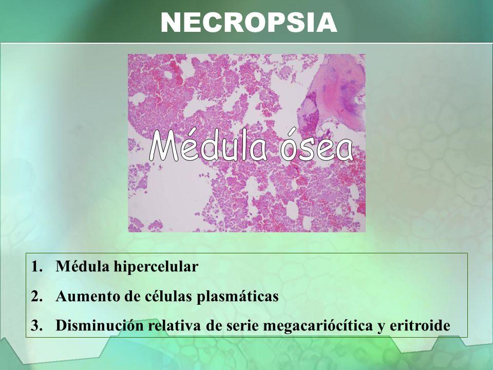 1.Médula hipercelular 2.Aumento de células plasmáticas 3.Disminución relativa de serie megacariócítica y eritroide