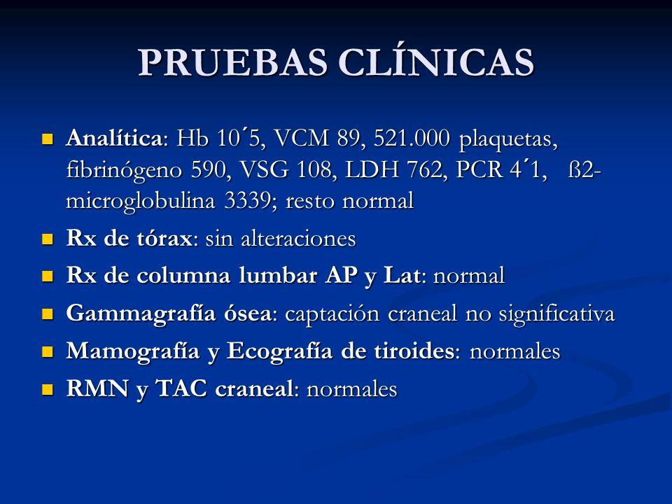 PRUEBAS CLÍNICAS Analítica: Hb 10´5, VCM 89, 521.000 plaquetas, fibrinógeno 590, VSG 108, LDH 762, PCR 4´1, ß2- microglobulina 3339; resto normal Anal