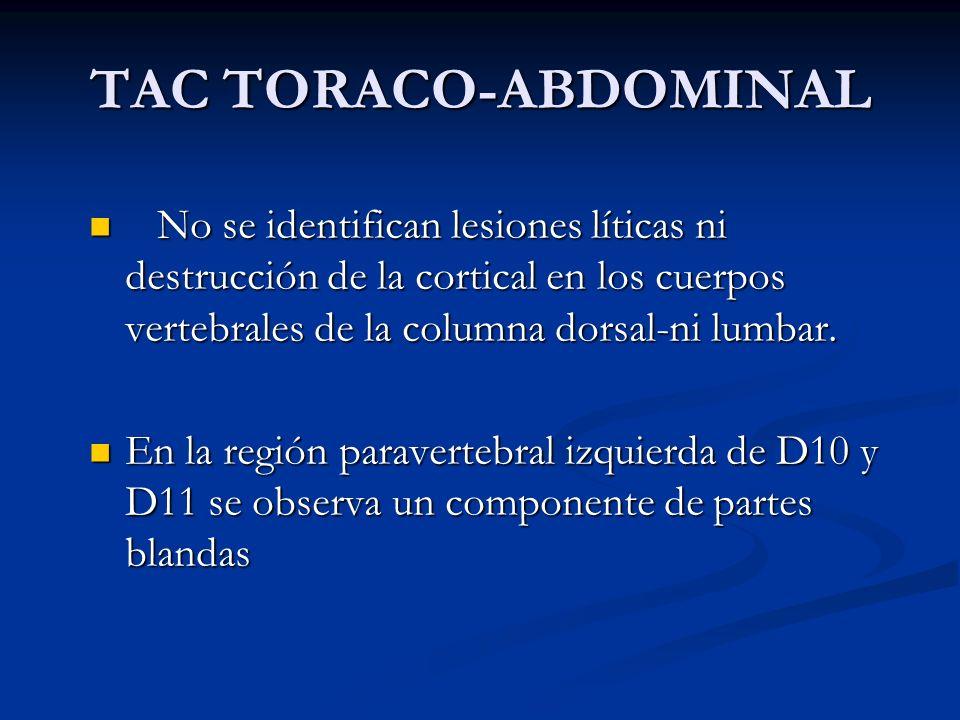 TAC TORACO-ABDOMINAL No se identifican lesiones líticas ni destrucción de la cortical en los cuerpos vertebrales de la columna dorsal-ni lumbar. No se