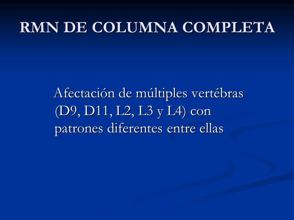 RMN DE COLUMNA COMPLETA Afectación de múltiples vertébras (D9, D11, L2, L3 y L4) con patrones diferentes entre ellas Afectación de múltiples vertébras