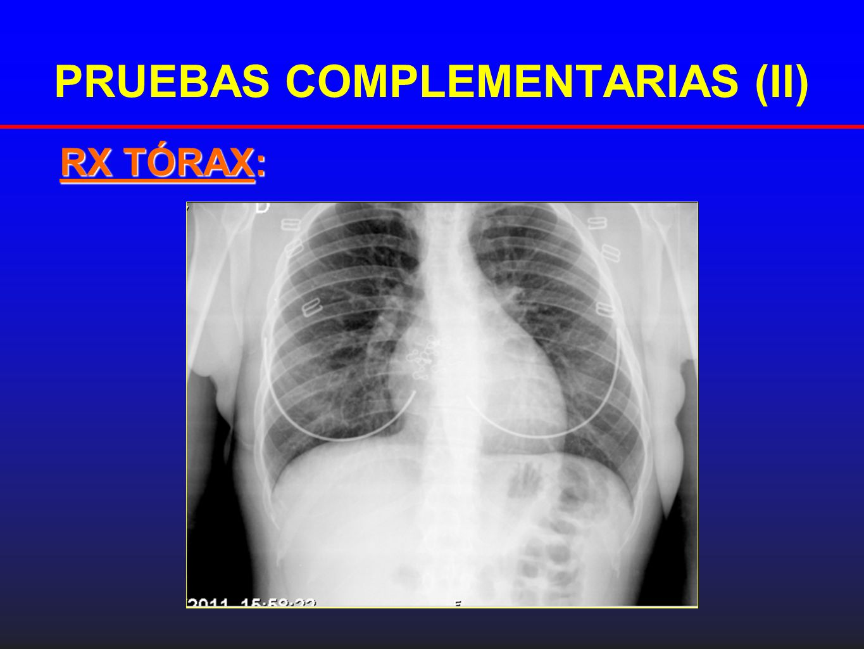 PRUEBAS COMPLEMENTARIAS (II) RX TÓRAX: