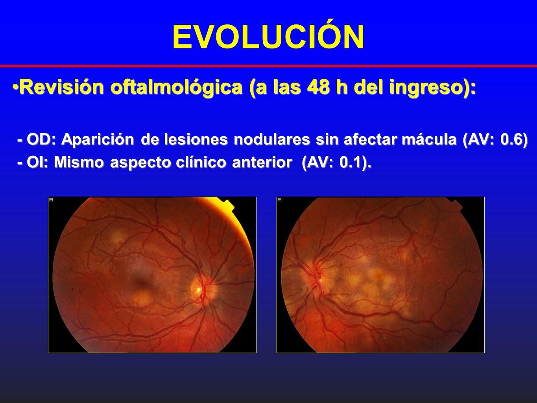 EVOLUCIÓN Revisión oftalmológica (a las 48 h del ingreso):Revisión oftalmológica (a las 48 h del ingreso): - OD: Aparición de lesiones nodulares sin a