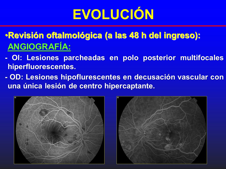 EVOLUCIÓN Revisión oftalmológica (a las 48 h del ingreso):Revisión oftalmológica (a las 48 h del ingreso):ANGIOGRAFÍA: - OI: Lesiones parcheadas en po