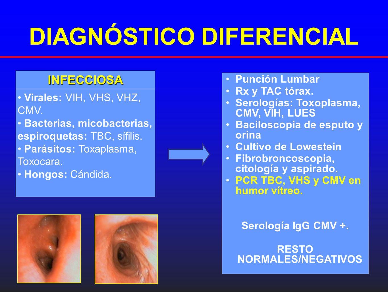 DIAGNÓSTICO DIFERENCIAL Punción Lumbar Rx y TAC tórax. Serologías: Toxoplasma, CMV, VIH, LUES Baciloscopia de esputo y orina Cultivo de Lowestein Fibr