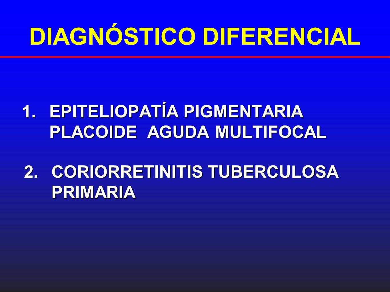 DIAGNÓSTICO DIFERENCIAL 1.EPITELIOPATÍA PIGMENTARIA PLACOIDE AGUDA MULTIFOCAL 2.CORIORRETINITIS TUBERCULOSA PRIMARIA