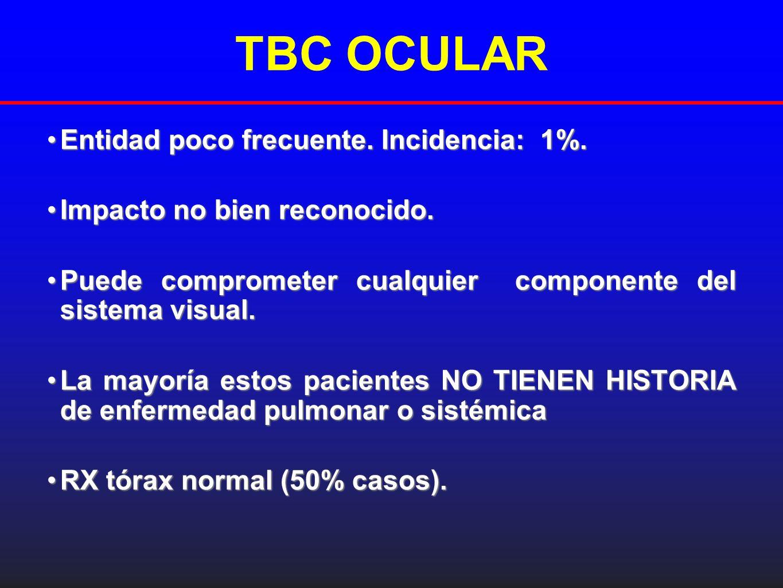 TBC OCULAR Entidad poco frecuente. Incidencia: 1%.Entidad poco frecuente. Incidencia: 1%. Impacto no bien reconocido.Impacto no bien reconocido. Puede