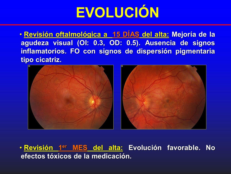 EVOLUCIÓN Revisión oftalmológica a 15 DÍAS del alta:Mejoría de la agudeza visual (OI: 0.3, OD: 0.5). Ausencia de signos inflamatorios. FO con signos d