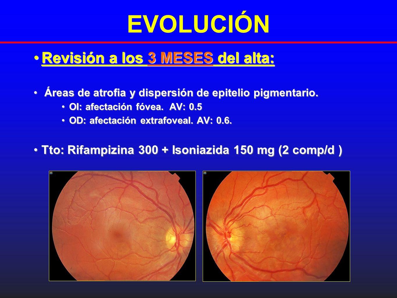 EVOLUCIÓN Revisión a los 3 MESES del alta:Revisión a los 3 MESES del alta: Áreas de atrofia y dispersión de epitelio pigmentario.Áreas de atrofia y di