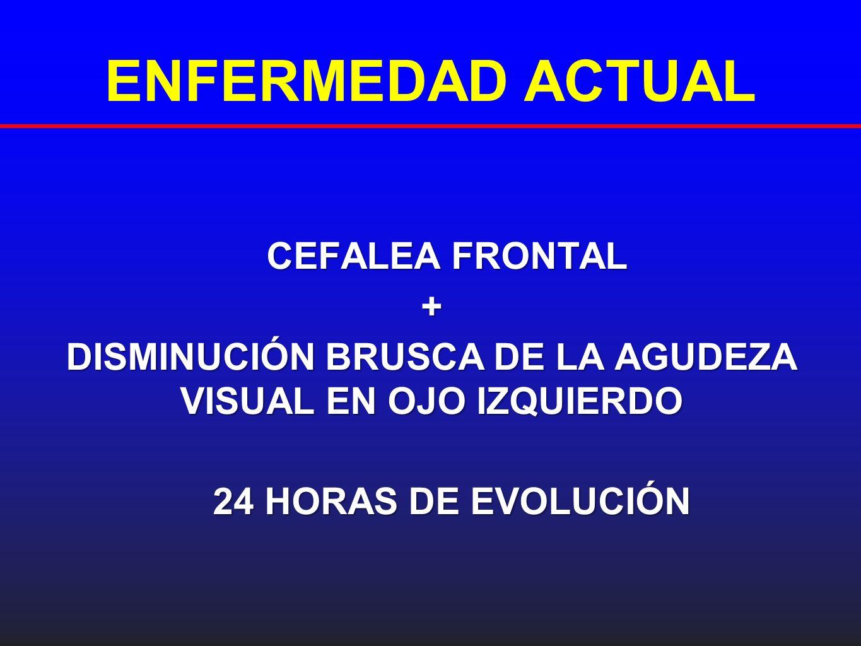 ENFERMEDAD ACTUAL CEFALEA FRONTAL CEFALEA FRONTAL+ DISMINUCIÓN BRUSCA DE LA AGUDEZA VISUAL EN OJO IZQUIERDO 24 HORAS DE EVOLUCIÓN 24 HORAS DE EVOLUCIÓ