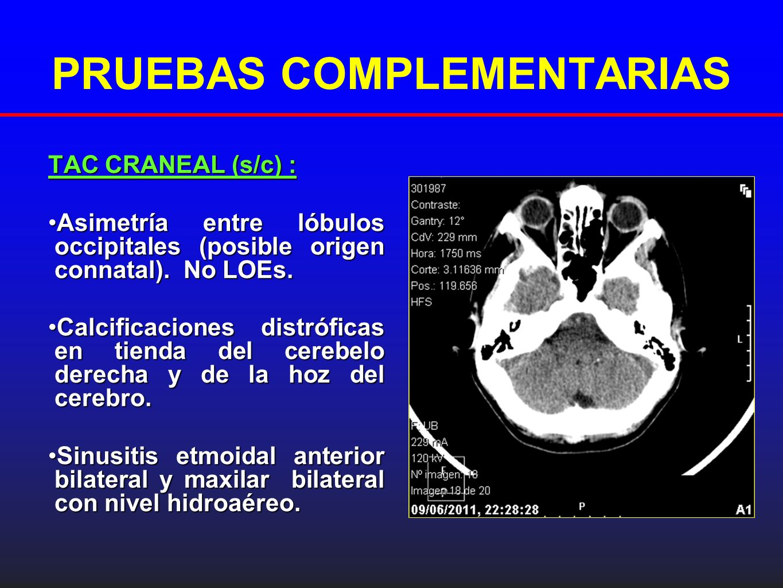 PRUEBAS COMPLEMENTARIAS TAC CRANEAL (s/c) : Asimetría entre lóbulos occipitales (posible origen connatal). No LOEs.Asimetría entre lóbulos occipitales