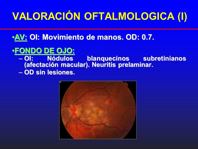 Tomografía de Coherencia óptica (OCT): Tomografía de Coherencia óptica (OCT): OI: Lesiones hiperrefringentes intrarretinianas.