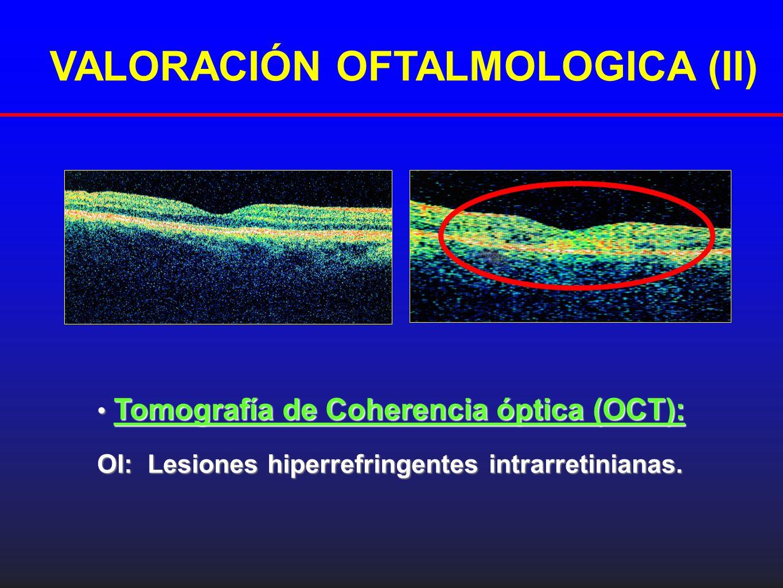 Tomografía de Coherencia óptica (OCT): Tomografía de Coherencia óptica (OCT): OI: Lesiones hiperrefringentes intrarretinianas. VALORACIÓN OFTALMOLOGIC