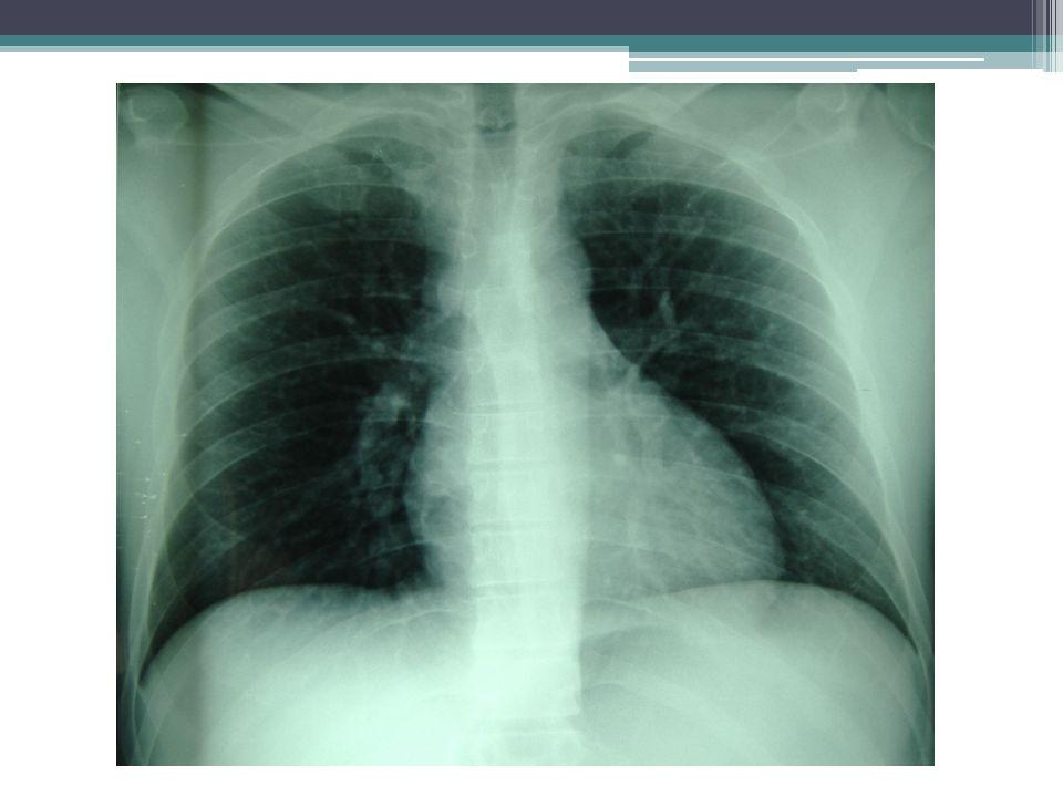 Cefalea Confusión Visión borrosa Midriasis Xeroftalmía Xerostomía Anhidrosis Distensión abdominal Estreñimiento Íleo Retención urinaria Impotencia Trastornos del ritmo Hipotensión ortostática Disfagia