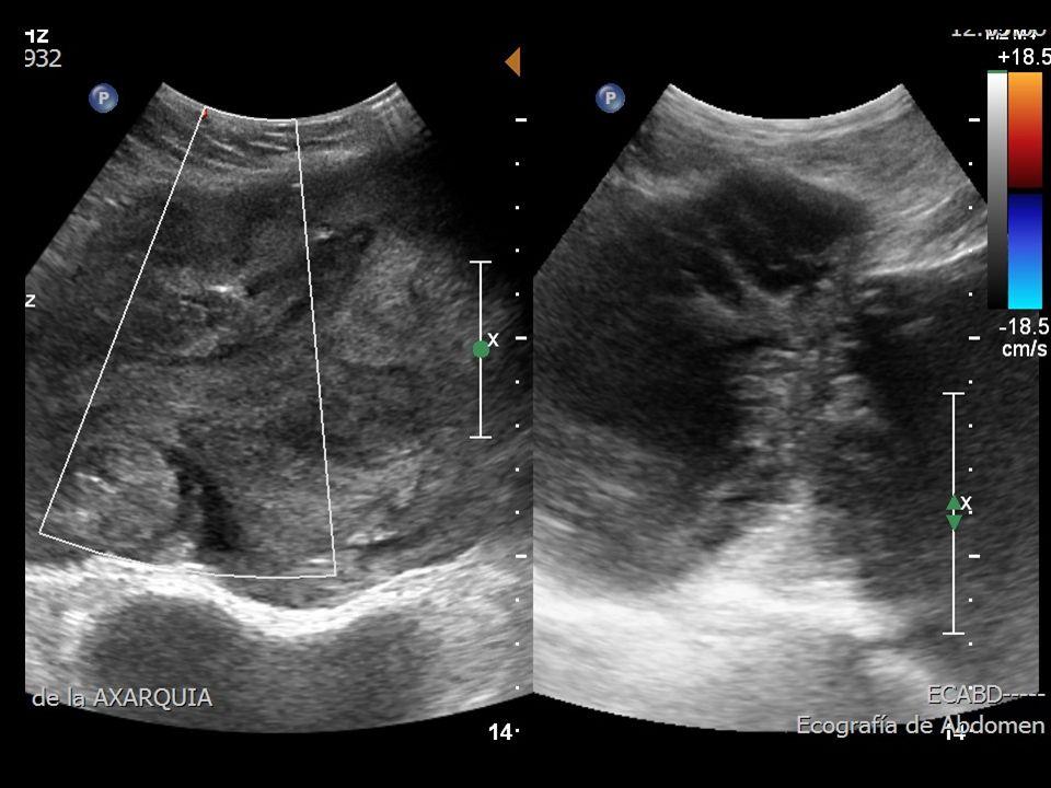 PRUEBAS COMPLEMENTARIAS DE PRIMER NIVEL Ecografía abdominal: hígado de estructura homogénea.