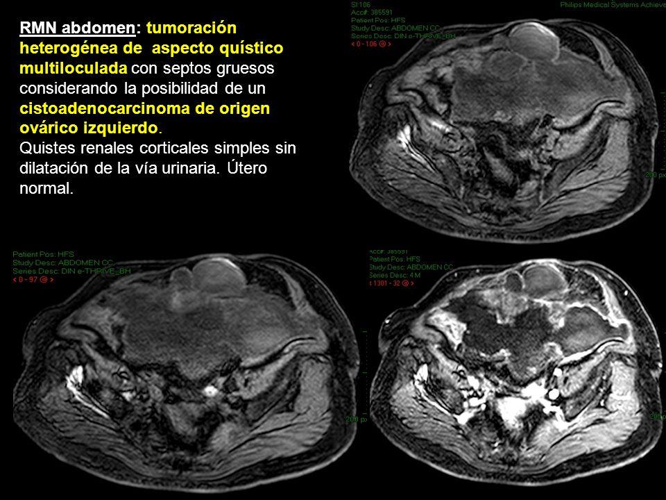PRUEBA DIAGNÓSTICA PAAF de la masa peritoneal: células mucosecretoras sin atipia con fondo mixoide compatible con un pseudomixoma peritoneal.