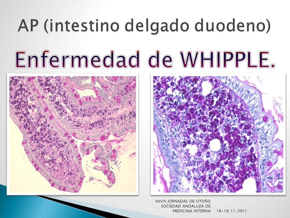 18-19/11/2011 XXVIII JORNADAS DE OTOÑO SOCIEDAD ANDALUZA DE MEDICINA INTERNA