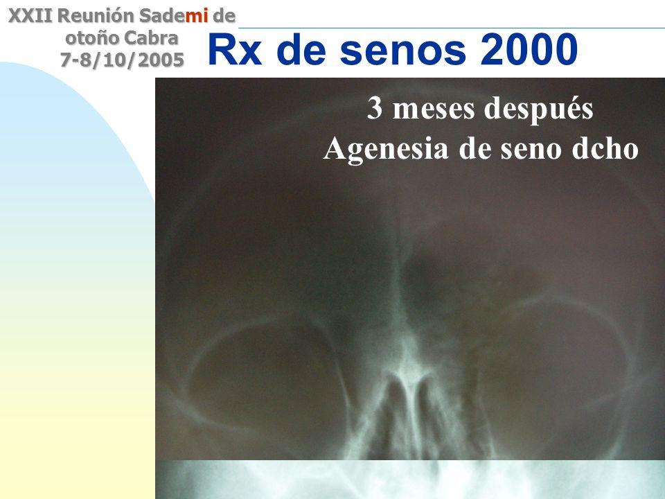 Saltar a la primera página XXII Reunión Sademi de otoño Cabra 7-8/10/2005 Sinusitis? Rx de senos 2000 3 meses después Agenesia de seno dcho