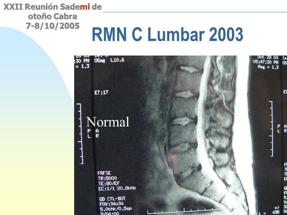 Saltar a la primera página XXII Reunión Sademi de otoño Cabra 7-8/10/2005 RMN C Lumbar 2003 Normal