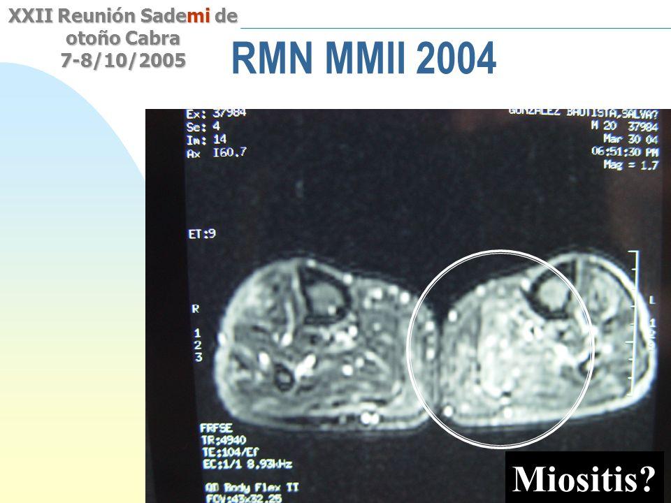 Saltar a la primera página XXII Reunión Sademi de otoño Cabra 7-8/10/2005 RMN MMII 2004 Miositis?