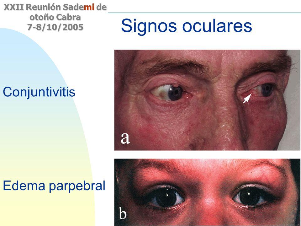 Saltar a la primera página XXII Reunión Sademi de otoño Cabra 7-8/10/2005 Signos oculares Conjuntivitis Edema parpebral