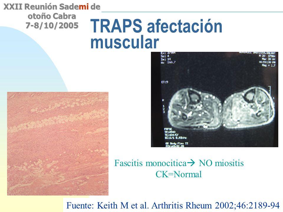 Saltar a la primera página XXII Reunión Sademi de otoño Cabra 7-8/10/2005 TRAPS afectación muscular Fascitis monocitica NO miositis CK=Normal Fuente: