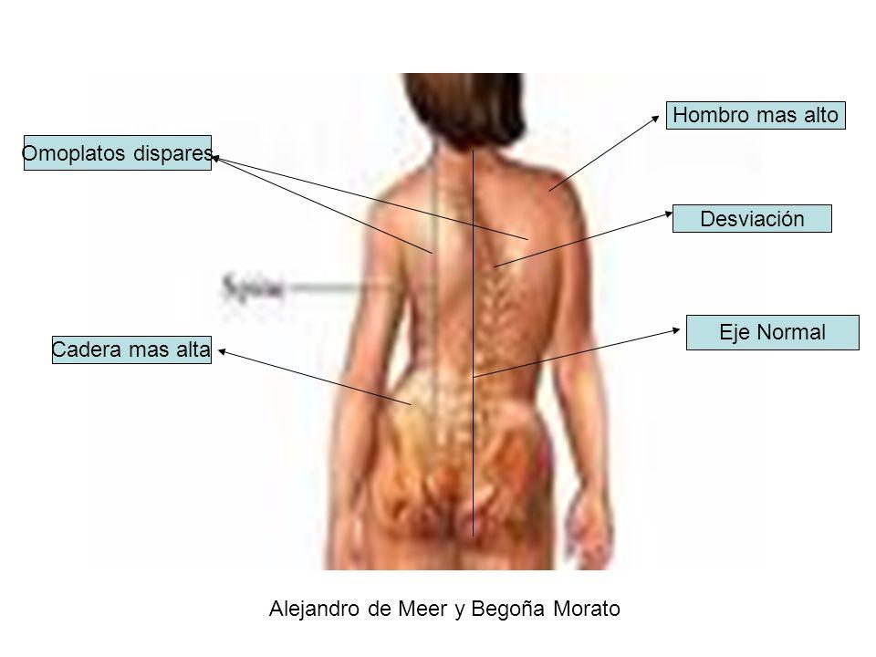 Desviación Cadera mas alta Hombro mas alto Omoplatos dispares Eje Normal Alejandro de Meer y Begoña Morato