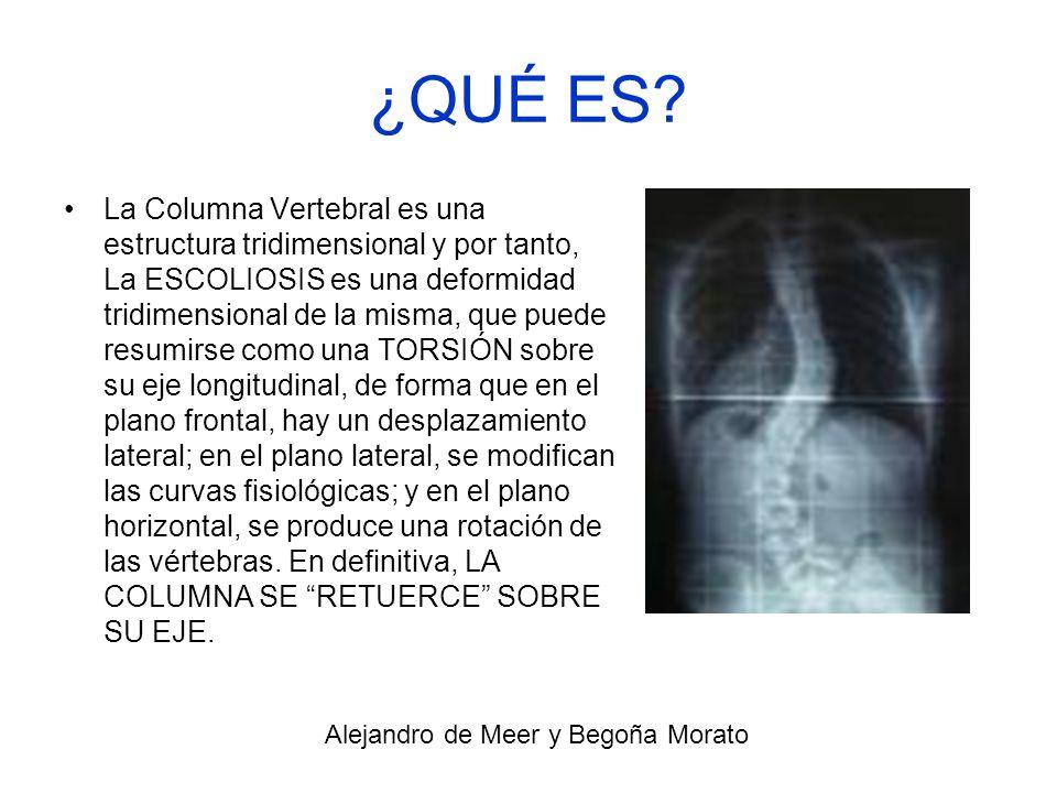 ¿QUÉ ES? La Columna Vertebral es una estructura tridimensional y por tanto, La ESCOLIOSIS es una deformidad tridimensional de la misma, que puede resu