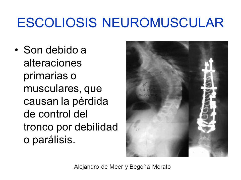 ESCOLIOSIS NEUROMUSCULAR Son debido a alteraciones primarias o musculares, que causan la pérdida de control del tronco por debilidad o parálisis. Alej