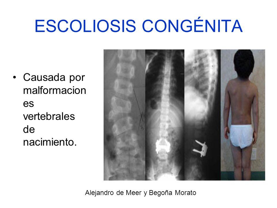 ESCOLIOSIS CONGÉNITA Causada por malformacion es vertebrales de nacimiento. Alejandro de Meer y Begoña Morato