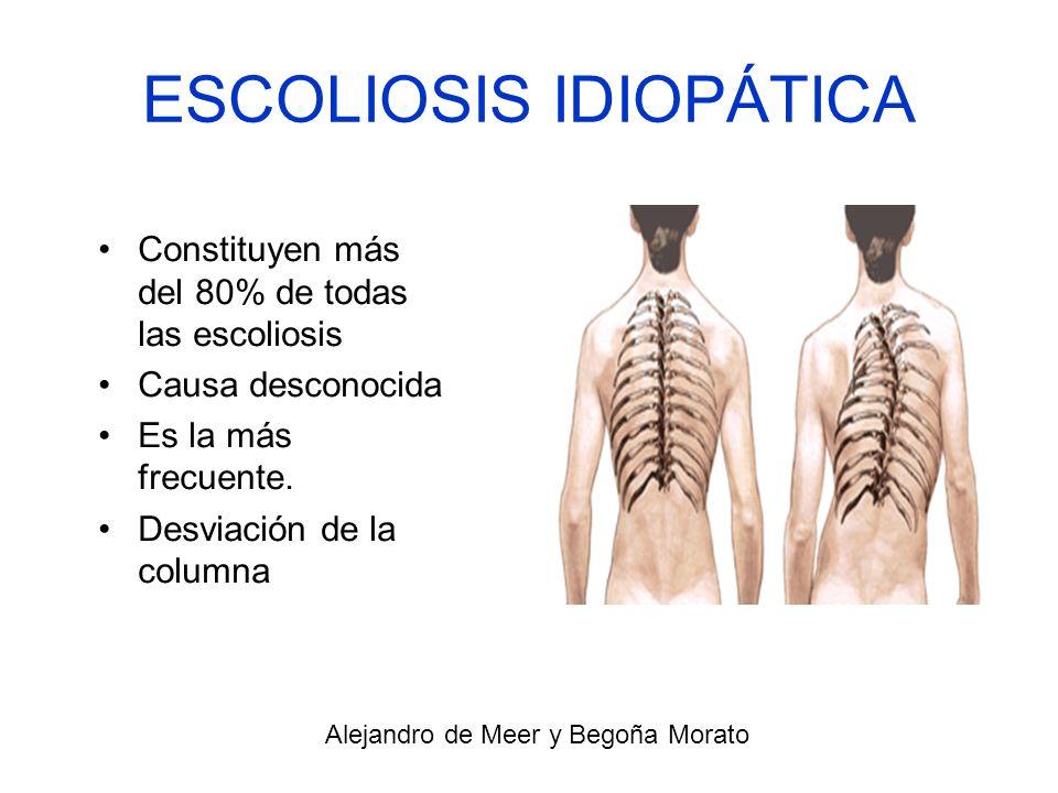 ESCOLIOSIS IDIOPÁTICA Constituyen más del 80% de todas las escoliosis Causa desconocida Es la más frecuente. Desviación de la columna Alejandro de Mee