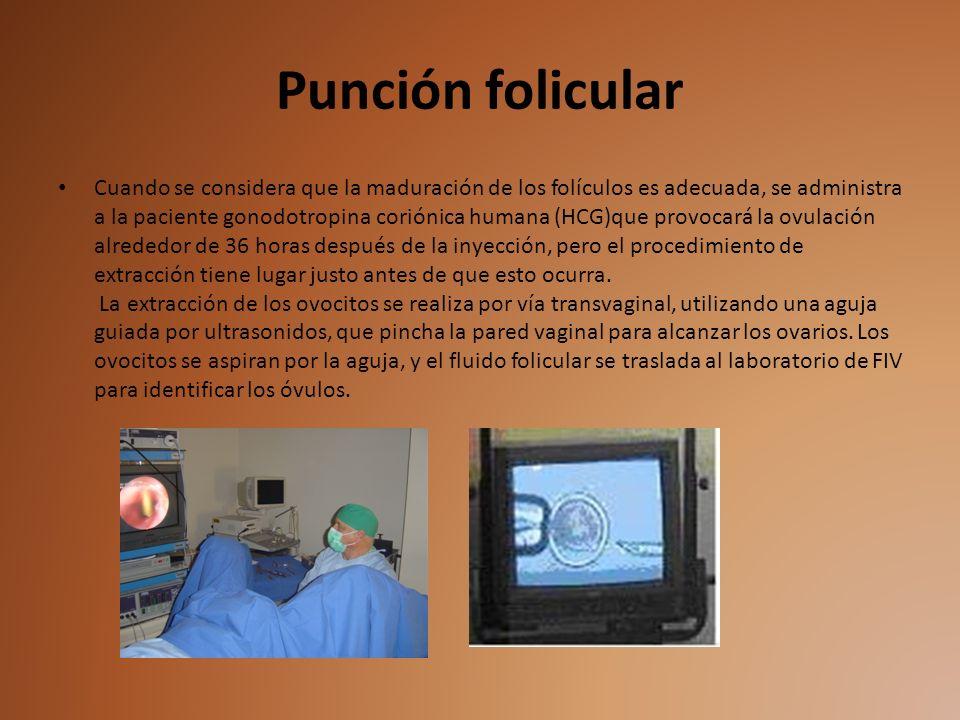 Punción folicular Cuando se considera que la maduración de los folículos es adecuada, se administra a la paciente gonodotropina coriónica humana (HCG)