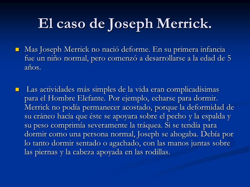 Mas Joseph Merrick no nació deforme. En su primera infancia fue un niño normal, pero comenzó a desarrollarse a la edad de 5 años. Mas Joseph Merrick n