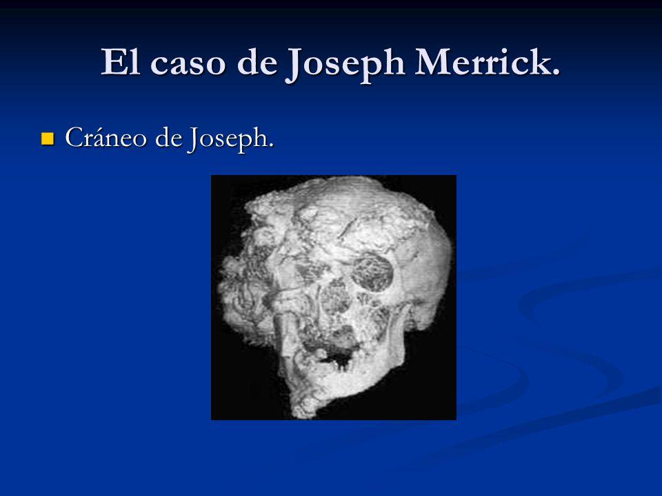 El caso de Joseph Merrick. Cráneo de Joseph. Cráneo de Joseph.