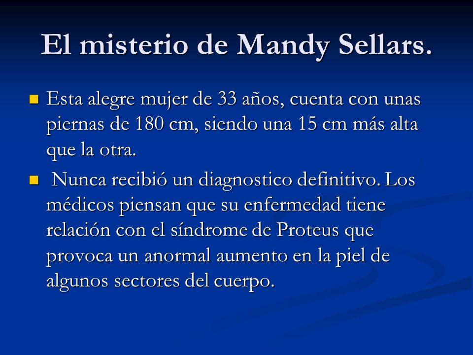 El misterio de Mandy Sellars. Esta alegre mujer de 33 años, cuenta con unas piernas de 180 cm, siendo una 15 cm más alta que la otra. Esta alegre muje