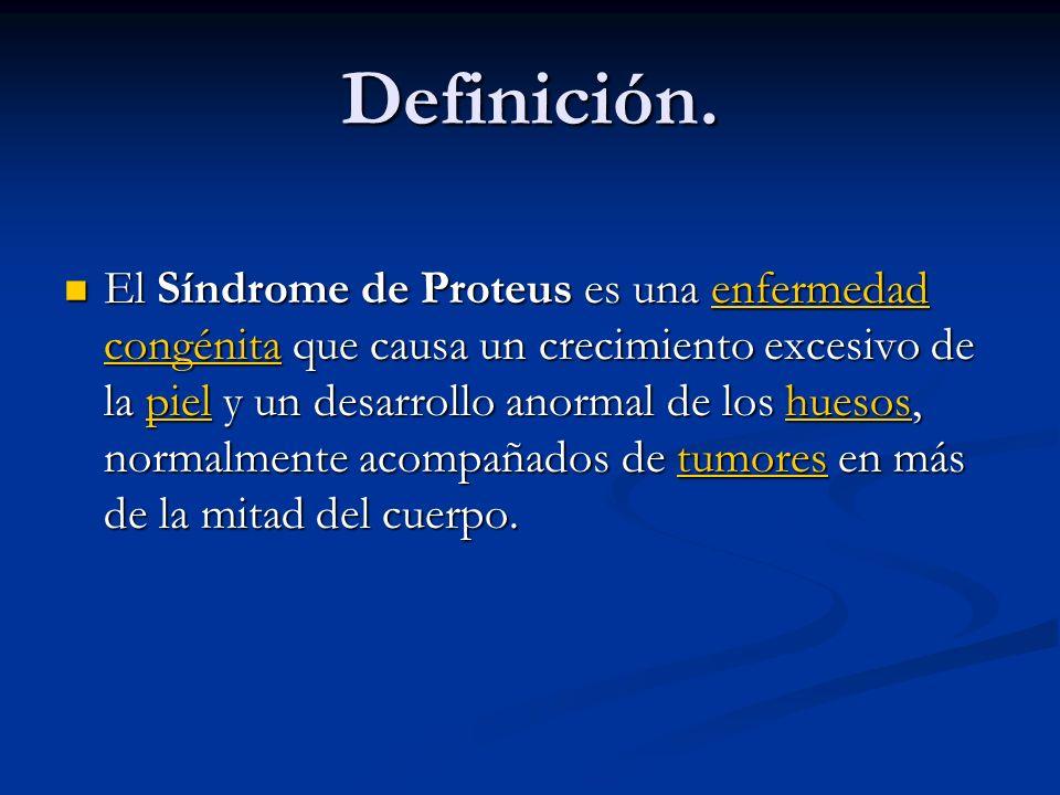 Definición. El Síndrome de Proteus es una enfermedad congénita que causa un crecimiento excesivo de la piel y un desarrollo anormal de los huesos, nor