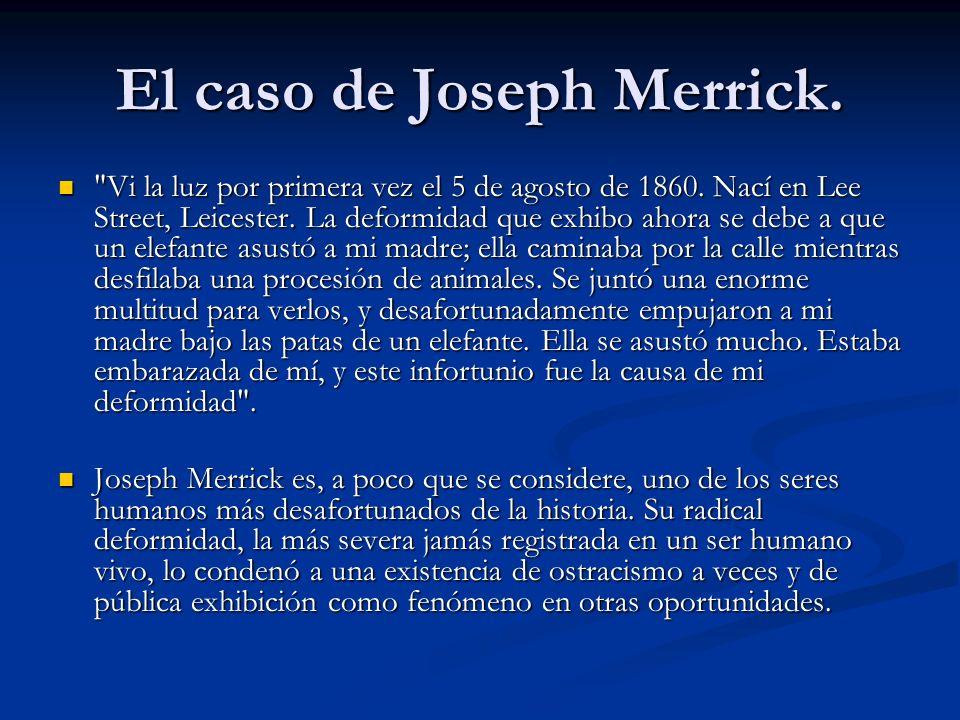El caso de Joseph Merrick.