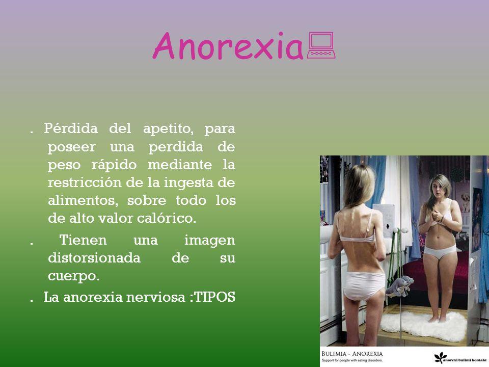Bulimia: Desorden alimenticio causado por la ansiedad y por una preocupación excesiva por el peso corporal y el aspecto físico. La bulimia es una enfe