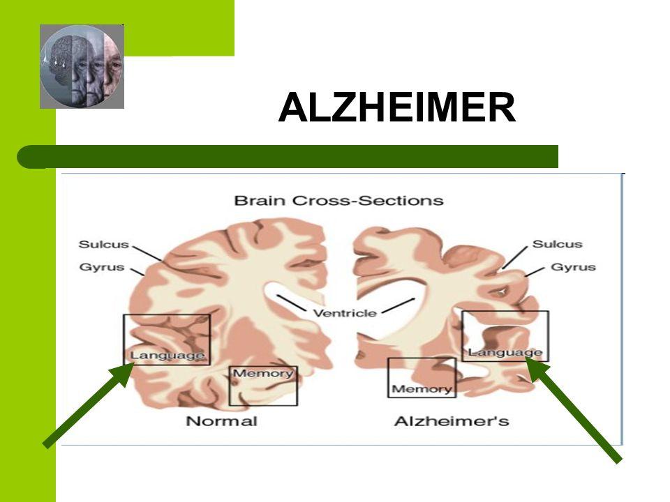 ALHEIMER DIAGNÓSTICO El diagnóstico se realiza mediante una serie de tests neuropsicológicos.