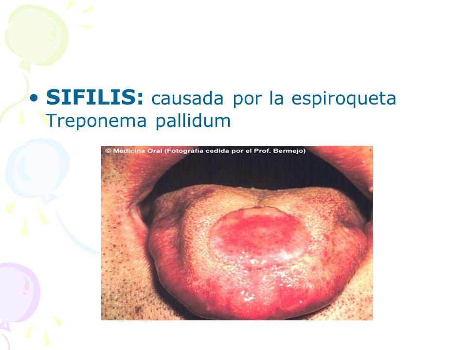 SIFILIS: causada por la espiroqueta Treponema pallidum