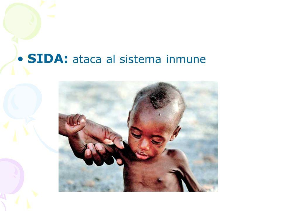 SIDA: ataca al sistema inmune