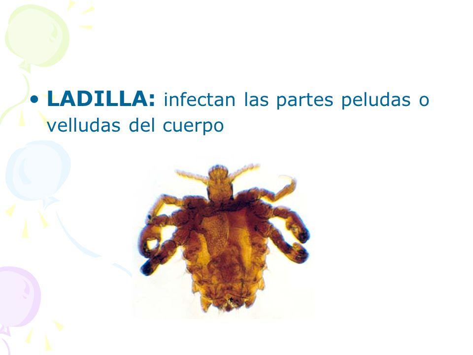 LADILLA: infectan las partes peludas o velludas del cuerpo