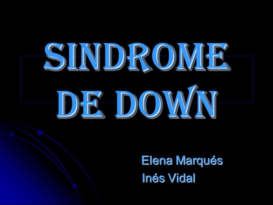Sindrome de down Elena Marqués Elena Marqués Inés Vidal Inés Vidal