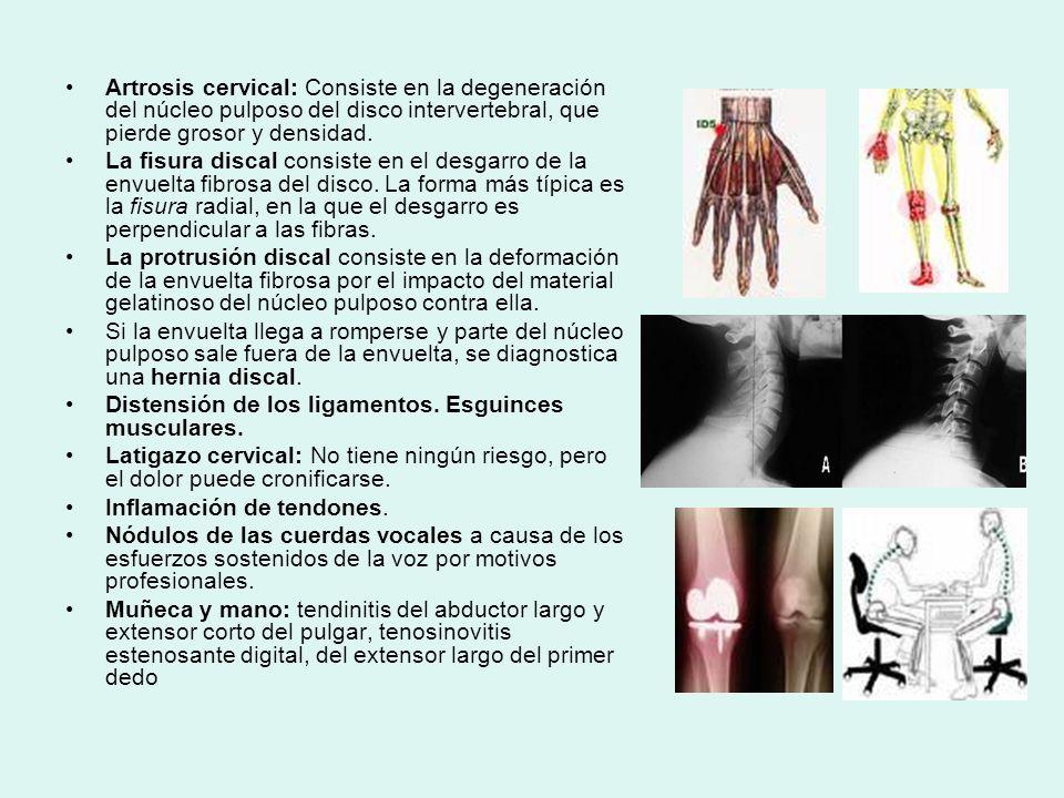Artrosis cervical: Consiste en la degeneración del núcleo pulposo del disco intervertebral, que pierde grosor y densidad. La fisura discal consiste en