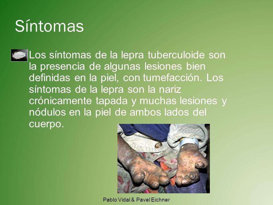 Síntomas Los síntomas de la lepra tuberculoide son la presencia de algunas lesiones bien definidas en la piel, con tumefacción.