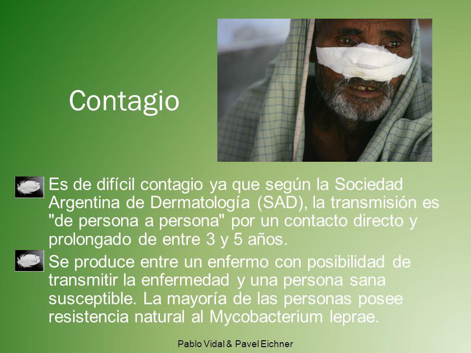 Es de difícil contagio ya que según la Sociedad Argentina de Dermatología (SAD), la transmisión es de persona a persona por un contacto directo y prolongado de entre 3 y 5 años.
